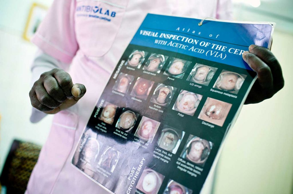 Nurse holding cervical cancer job aid