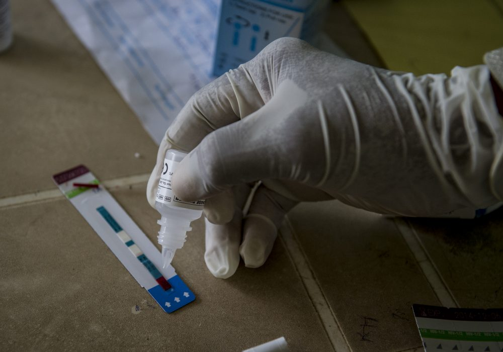 Solution being applied to an HIV testing strip.